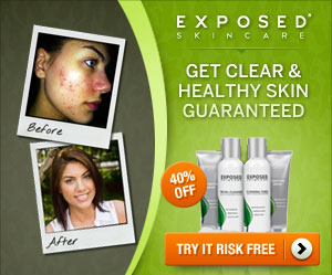 exposed-skin-care-cystic-acne-treatment