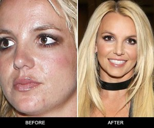 Facial resurfacing brands rated are the