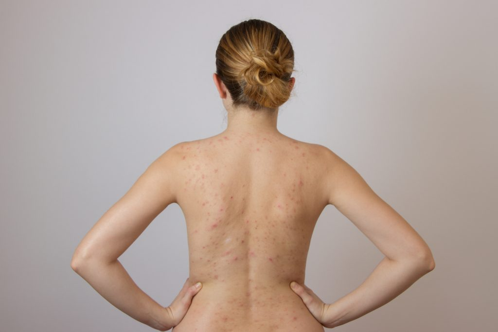 Back Acne Home Remedies You Should Know About