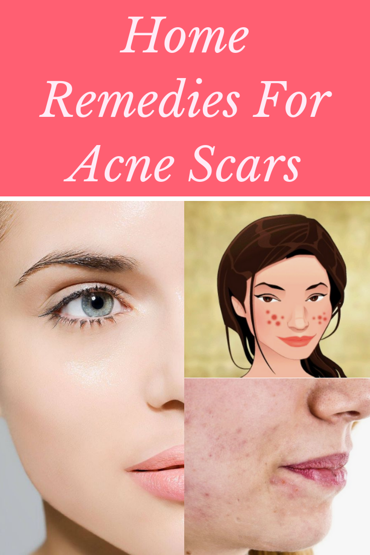 14 Home Remedies For Acne Scars That Actually Work | Makeup ...