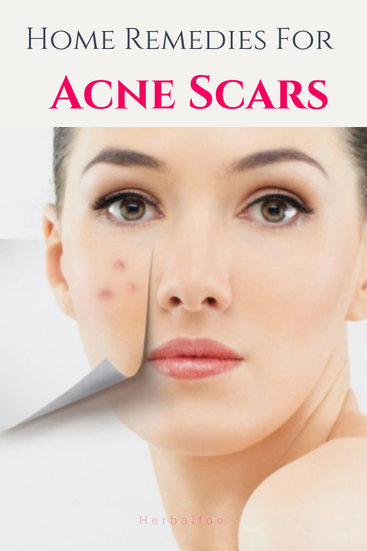14 Home Remedies For Acne Scars That Actually Work | Skin ...