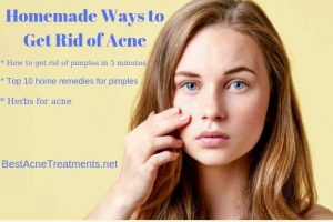Homemade Ways to Get Rid of Acne