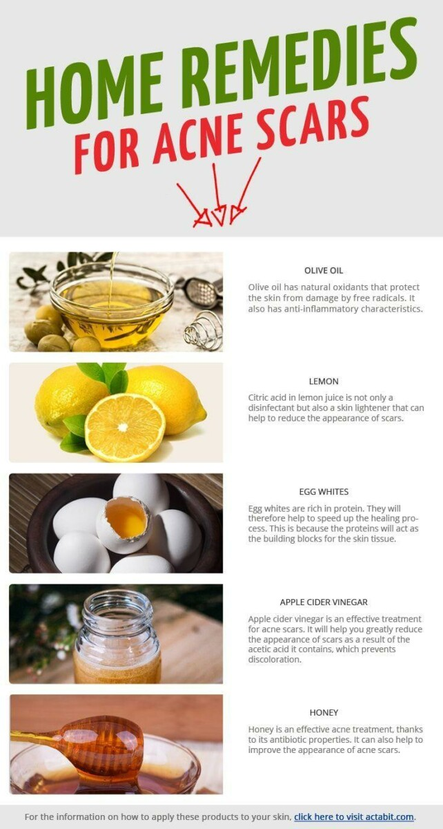 Home Remedies for Acne Scars: Reduce Redness & Swelling in ...