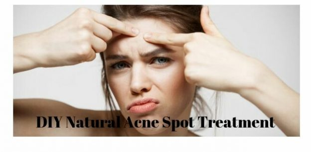 DIY Natural Acne Spot Treatment, diy overnight acne spot treatment, diy spot treatment for acne scars, best home remedy for acne overnight