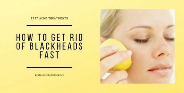 How to Get Rid of Blackheads Fast