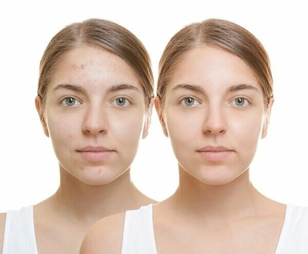 Acne Nodules Treatment