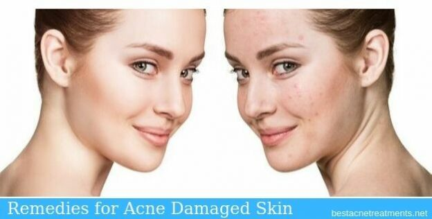 Remedies for Acne Damaged Skin, Best Acne Treatments, Acne Scar Treatment and more.. Bestacnetreatments.net Acne Treatments Guide