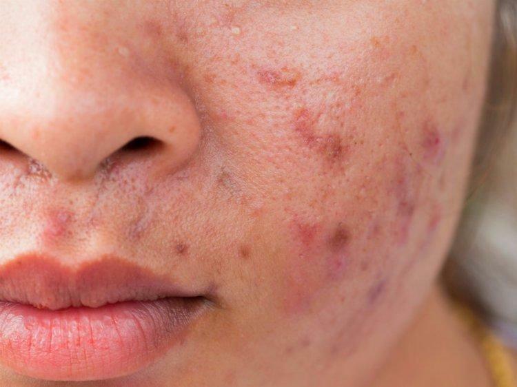 Zinc As An Acne Treatment Can Zinc Make Acne Worse Top Acne