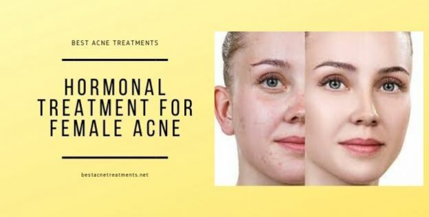 Hormonal Treatment for Female Acne